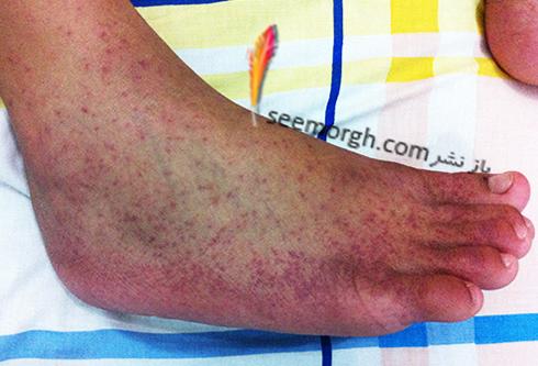 mosquito_chikunguya_rash.jpg
