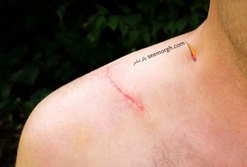 اسکار زخم