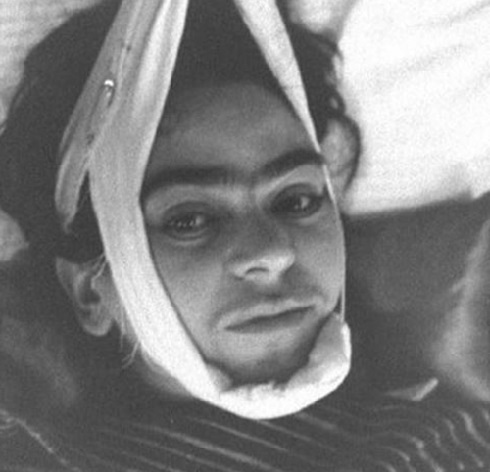 بیماری فریدا کالو Frida Kahlo