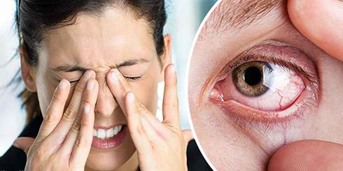 علایم خشکی چشم