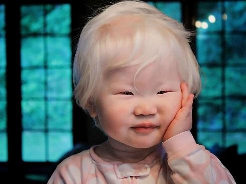 Albinisme.jpg