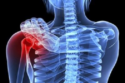 استخوان درد