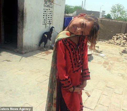 گردن کج دختر بچه پاکستانی