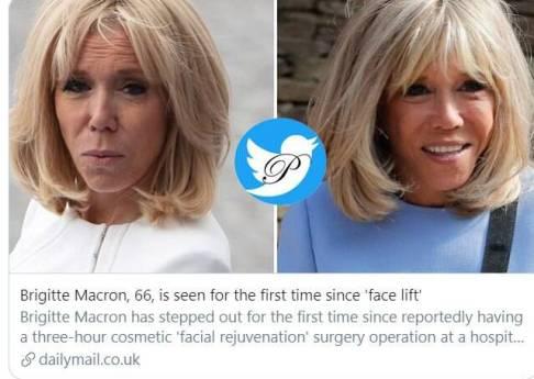 چهره بریجیت مکرون پس از جراحی زیبایی