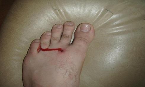 عفونت پا