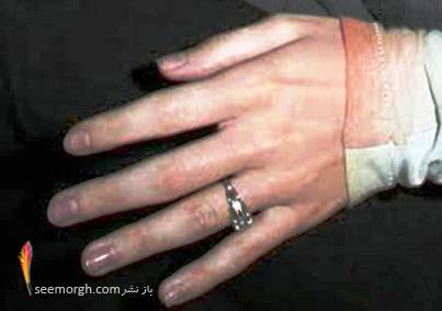 حلقه ی نامزدی کیتی پری
