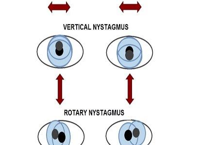 شایع ترین بیماری های چشم که احتمال ابتلا به آن زیاد است!