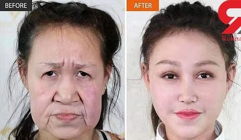 چهره دختر جوان قبل و بعد از جراحی زیبایی