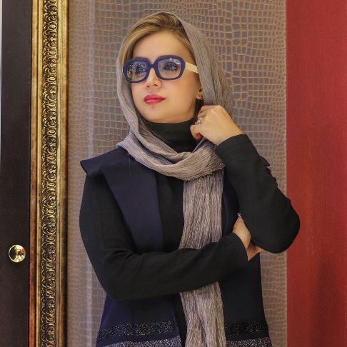 عکس جدیدی از چهره شبنم قلی خانی
