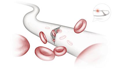 پیرونی- پارگی رگهای خونی به دلیل آسیب دیدگی آلت تناسلی