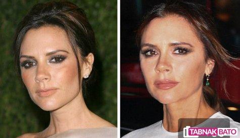مقایسه چهره ویکتوریا بکام با چهره 10 سال پیش وی.jpg