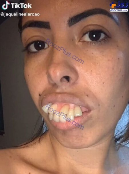 زن جوان قبل از جراحی فک