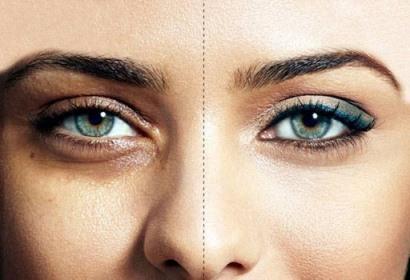 روشهایی ساده برای رفع سیاهی دور چشم