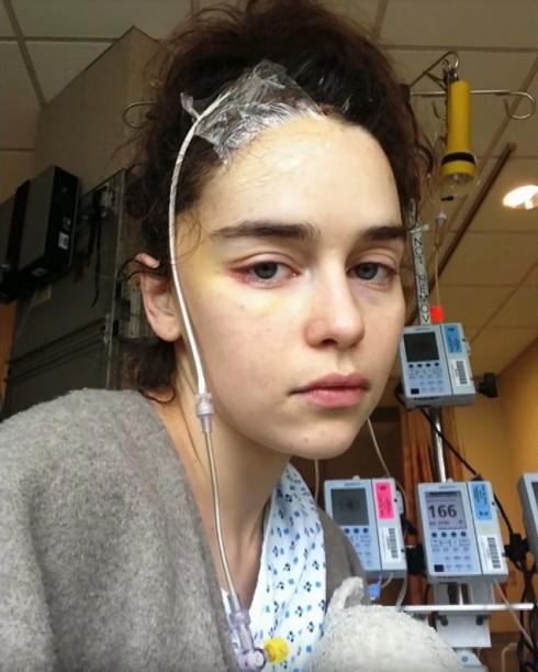 امیلیا کلارک در بیمارستان