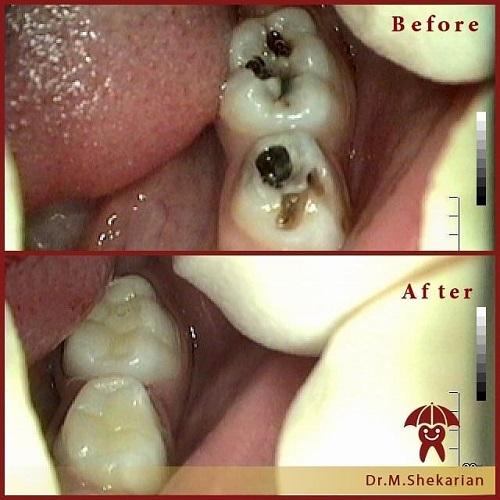 Tooth.jpg