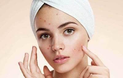 درمان جوش صورت با روش های طبیعی، بدون نیاز به مواد شیمیایی!!