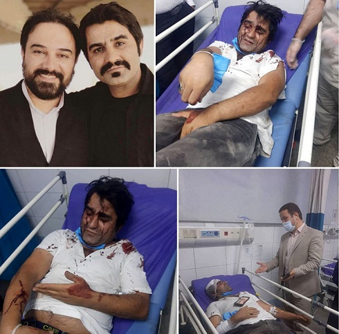 حمله خونین به بازیگر و کارگردان سریال دودکش + عکس