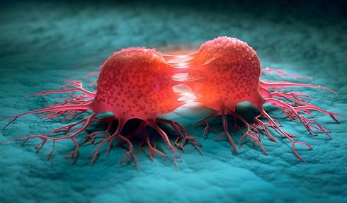 لوسمی یا سرطان خون