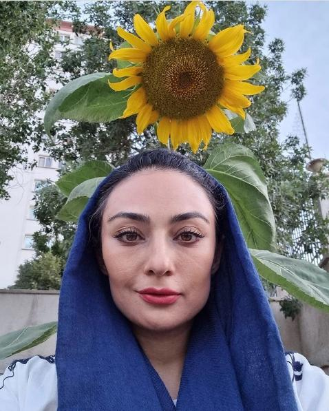 چهره یکتا ناصر پس از انجام جراحی زیبایی!!
