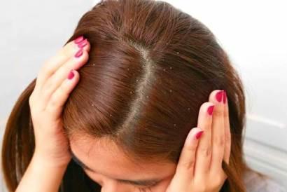درمان شوره سر با روشهای طبیعی و موثر