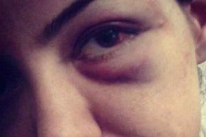 خانم مجری! عکس چشم کبودت را در اینستاگرام نگذار!