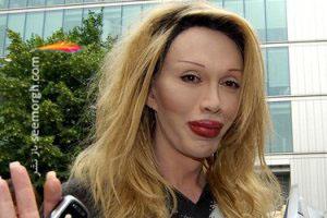 خواننده جنجالی پس از انجام 300 جراحی زیبایی درگذشت