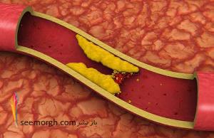 چند اقدام ساده برای کاهش کلسترول خون