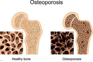 با این مواد غذایی از پوکی استخوان جلوگیری کنیم