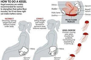 ورزش کگل، بسیار موثر، بسیار ساده، قابل انجام در هر موقعیت