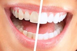 دلایل بدرنگی دندان ها چیست؟