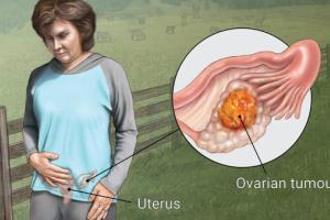 علائم ابتلا به تودههای تخمدانی را جدی بگیرید