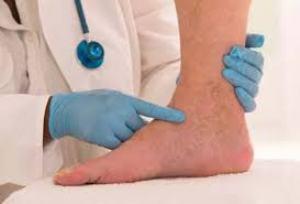 کدام علایم در پاها نشانه بیماری است