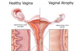 آتروفی واژن، دلایل, علائم و درمان