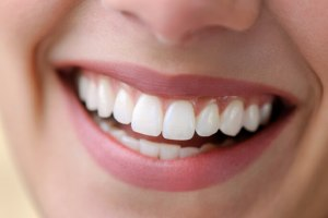 جرم گیری دندان با این مواد طبیعی