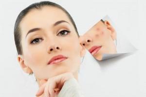 از بین بردن جوش صورت با یک روش سریع و موثر