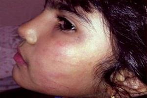 ضرب و شتم دختر 6 ساله توسط دندانپزشک اصفهانی