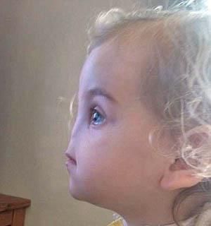 دختری که بدون بینی به دنیا آمد