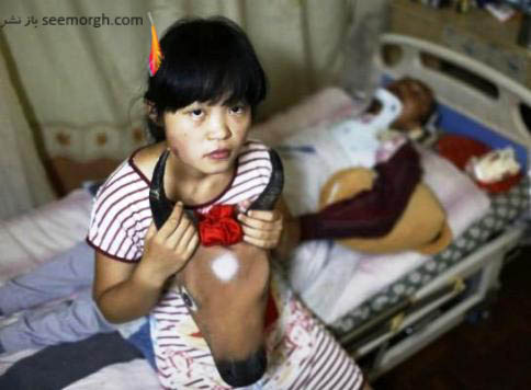 دختر چینی در کنار پدر بیمارش