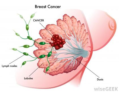 depictionofbreastcancer.jpg