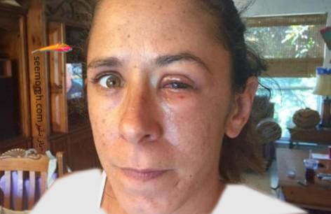 چشم کاترین پس از بهبودی!