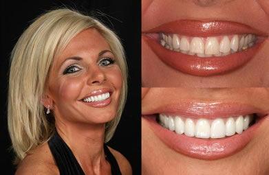 smile-makeover1.jpg