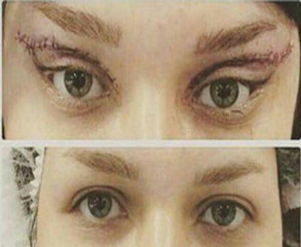 جراحی چشم گربه ای