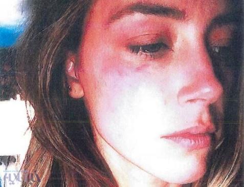 کتک خوردن همسر جانی دپ