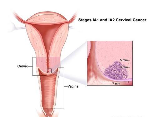 سرطان دهانه رحم مرحله 1 -  IA1 & IA2