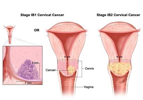 سرطان دهانه رحم مرحله 1 -  IB1 & IB2
