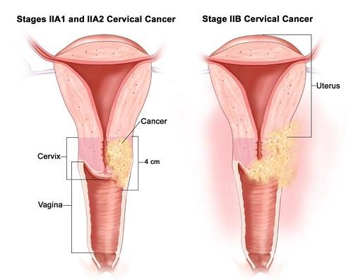 سرطان دهانه رحم مرحله 2 -  IIA1-IIA2 & IIB