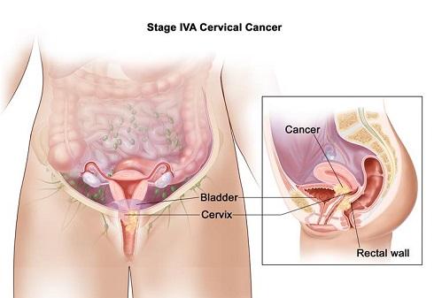 سرطان دهانه رحم مرحله 4 -  IVA