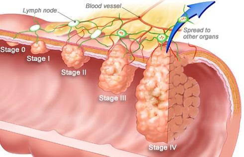 colorectal-cancer.jpg