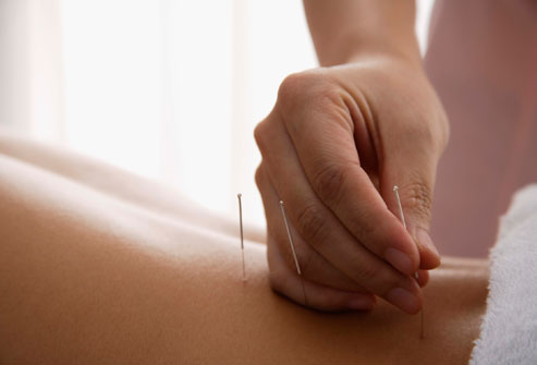 complementary-therapies-for-ms.jpg