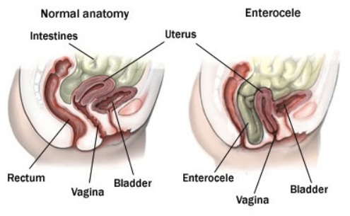 انتروسیل Enterocele